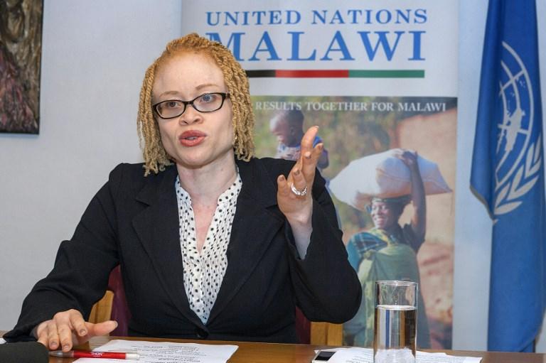albino malawi